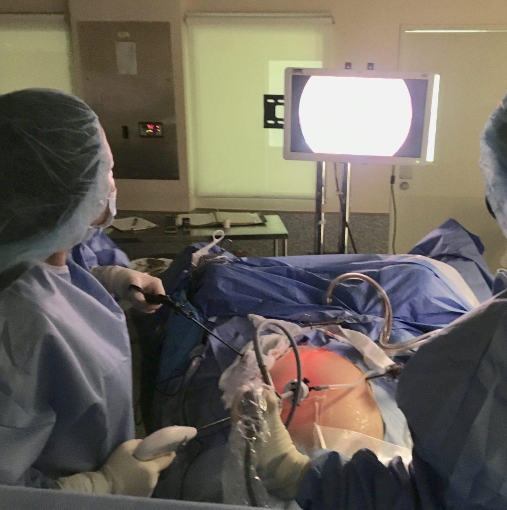 Laparoscopic Hysterectomy: Aleli Molera - Rebecca Singson ...